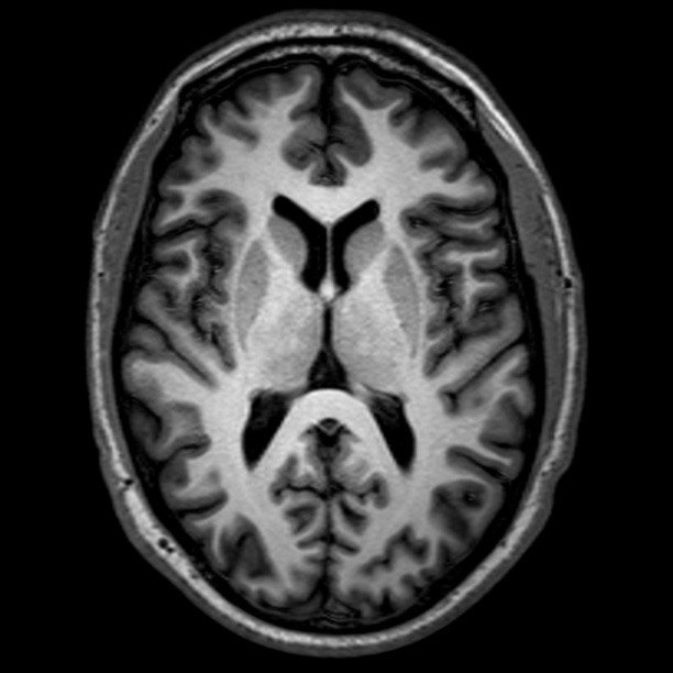 THE NEUROBIOLOGY OF HOW EMDR WORKS